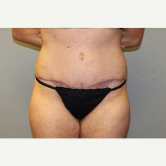 25-34 year old woman treated with Tummy Tuck after 3529179