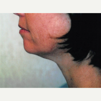45-54 year old woman treated with Neck Lift before 3764500