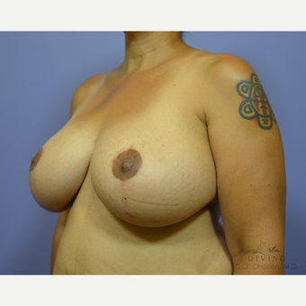45-54 year old woman treated with Breast Lift with Implants after 3419901