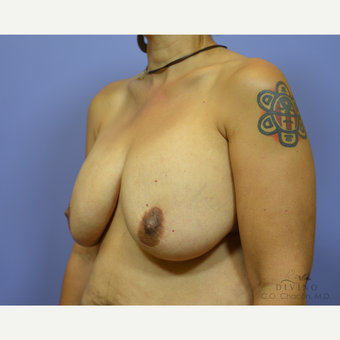 45-54 year old woman treated with Breast Lift with Implants before 3419901