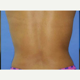 25-34 year old woman treated with Liposuction after 3374880