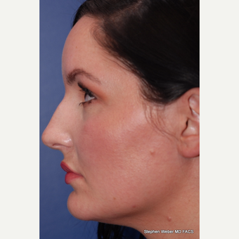 25-34 year old woman treated with Rhinoplasty before 3624088