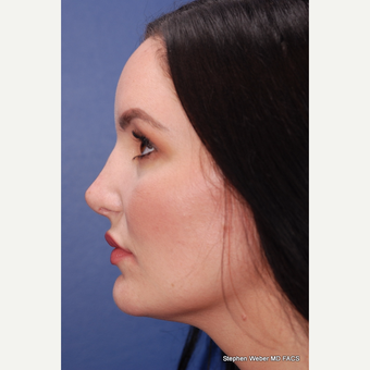 25-34 year old woman treated with Rhinoplasty after 3624088