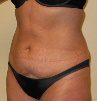 Tummy Tuck before 1219911