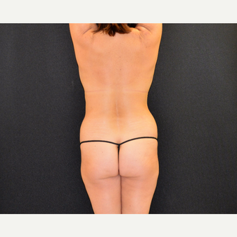 Liposculpture of the back, posterior flanks and lateral chest wall before 3742170