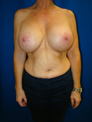 Benelli Lift, Revision Breast Surgery, Silicone gel Implants after 1454008