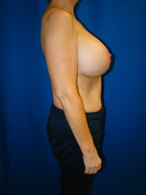 Benelli Lift, Revision Breast Surgery, Silicone gel Implants 1454008