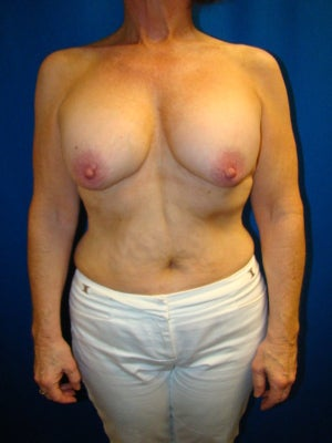 Benelli Lift, Revision Breast Surgery, Silicone gel Implants before 1454008