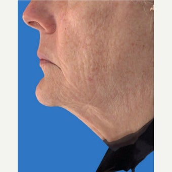 55-64 year old woman treated with Exilis before 1672357