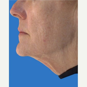 55-64 year old woman treated with Exilis after 1672357