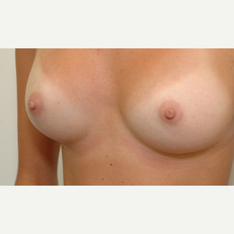 Breast Augmentation after 3108865