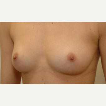 Breast Augmentation before 3108865
