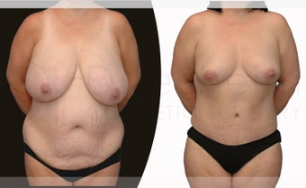 38 year old woman Tummy Tuck, Breast Reduction and Liposuction before 1127666
