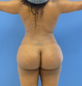 24 y.o. female – Liposuction of abdomen, flanks, & back with fat transfer to buttocks – 1250cc per side  after 1359587
