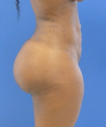 24 y.o. female – Liposuction of abdomen, flanks, & back with fat transfer to buttocks – 1250cc per side  1359587