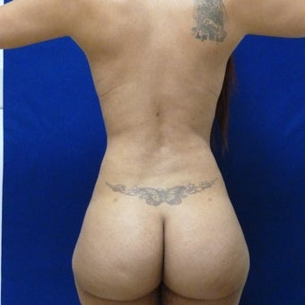 29 y.o. female  Liposuction of abdomen, flanks, and back with fat transfer to buttocks   1400cc pe