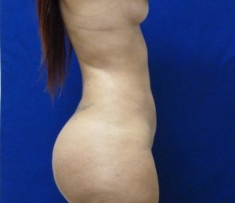 29 y.o. female – Liposuction of abdomen, flanks, and back with fat transfer to buttocks  – 1400cc pe 1895306