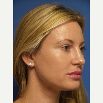 33 year old woman treated with Rhinoplasty and septoplasty after 3326240