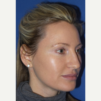 33 year old woman treated with Rhinoplasty and septoplasty before 3326240