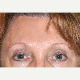 45-54 year old woman treated with Brow Lift after 3030520