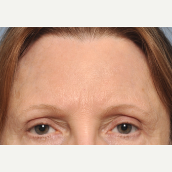 45-54 year old woman treated with Brow Lift before 3030520