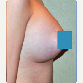 25-34 year old woman treated with Breast Augmentation after 3374827