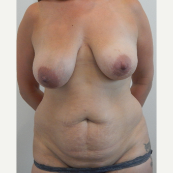 41 year old woman treated with Mommy Makeover before 3487627