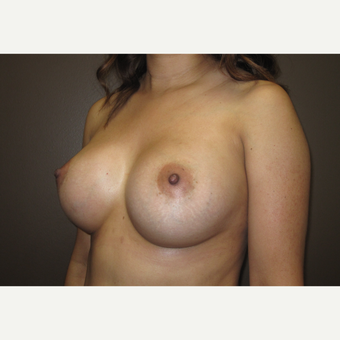 35-44 year old woman treated with Breast Implants after 3424516