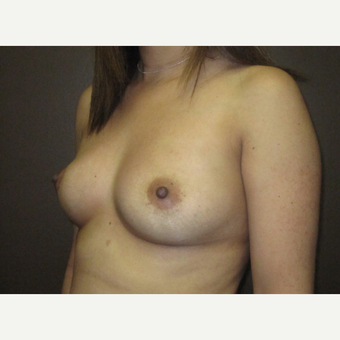 35-44 year old woman treated with Breast Implants before 3424516