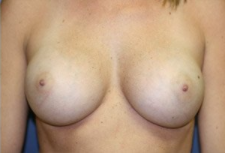 Breast Augmentation after 328463