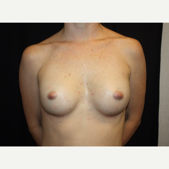 35-44 year old woman treated with Breast Augmentation after 3186311
