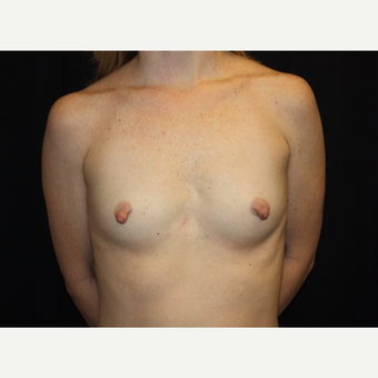 35-44 year old woman treated with Breast Augmentation before 3186311
