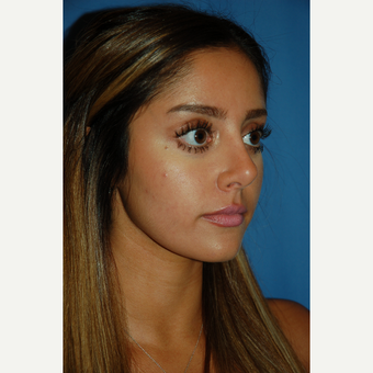 18-24 year old woman treated with Rhinoplasty after 3288881