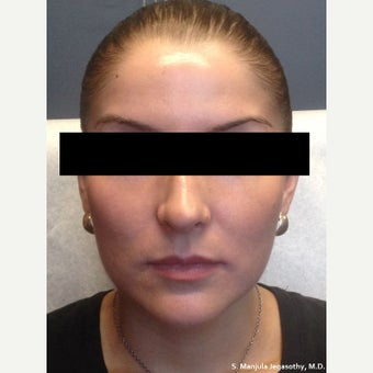 Facial Shaping with Voluma® and Dysport® after 1770687
