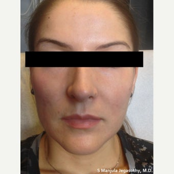 Facial Shaping with Voluma® and Dysport® before 1770687