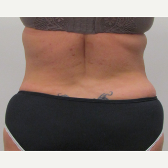 Tumescent Liposuction of the Sides for This 42 Year Old Woman after 3181976