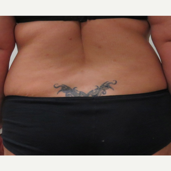 Tumescent Liposuction of the Sides for This 42 Year Old Woman before 3181976