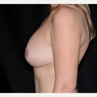 35-44 year old woman treated with Breast Augmentation after 3617810