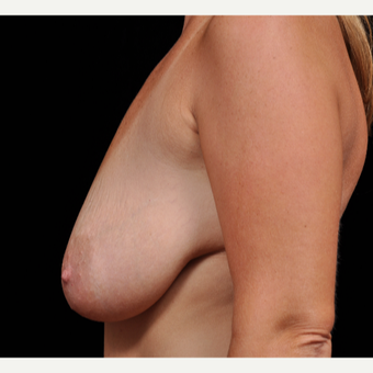 35-44 year old woman treated with Breast Augmentation before 3617810