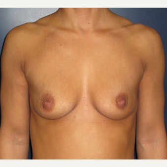 25-34 year old woman treated with Breast Augmentation before 3377056