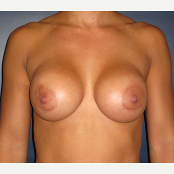 25-34 year old woman treated with Breast Augmentation after 3377056