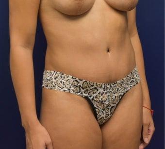 35-44 year old woman treated with Tummy Tuck after 3348767