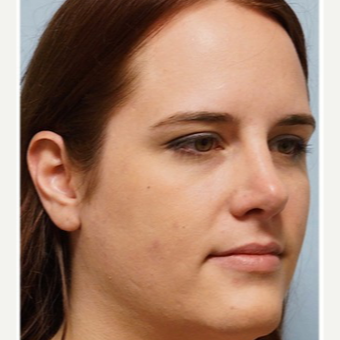 25-34 year old woman treated with Rhinoplasty after 3691920