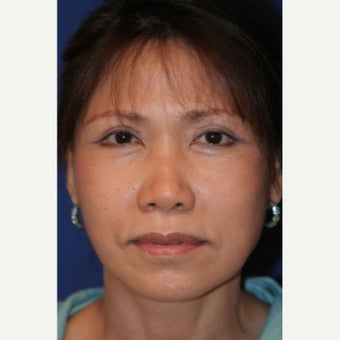 55-64 year old woman treated with Facelift after 2481453