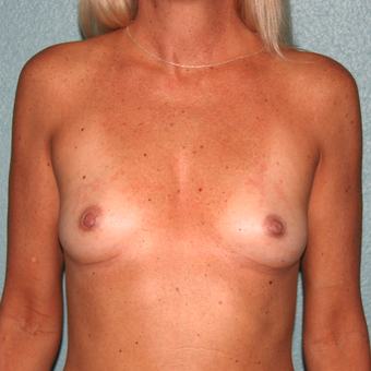35-44 year old woman treated with Breast Implant Removal after 3408177