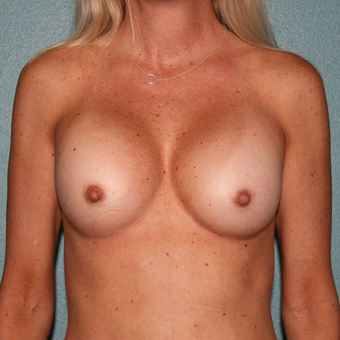 35-44 year old woman treated with Breast Implant Removal before 3408177