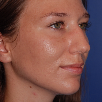 25-34 year old woman treated with Rhinoplasty before 3624009