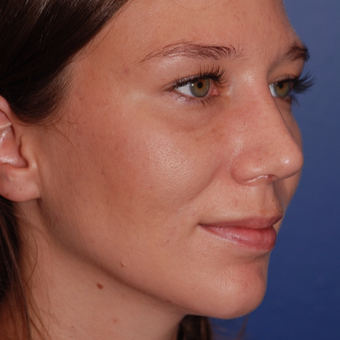 25-34 year old woman treated with Rhinoplasty after 3624009