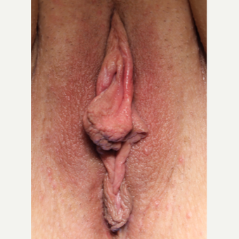 34 year old woman treated with Labiaplasty before 3482983