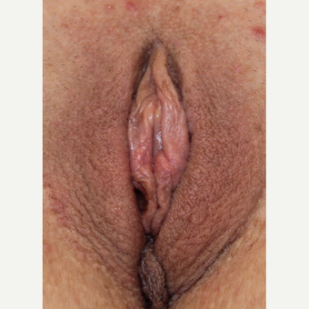 34 year old woman treated with Labiaplasty after 3482983